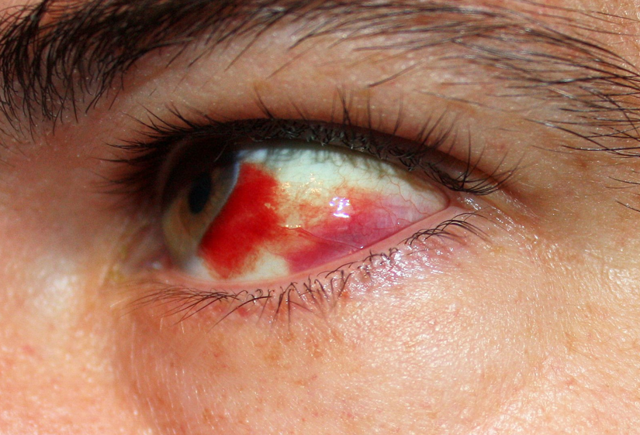 Лопнул сосуд в глазу: причины кровоизлияний, как лечить, профилатика