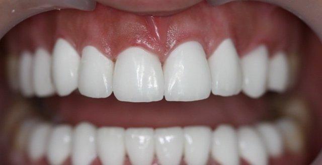 Люминиры на зубы: что это такое, в каких случаях применяется, отличия от виниров, этапы процедуры, преимущества