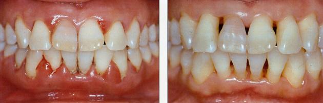 Мараславин – инструкция по применению в домашних условиях, как правильно разводить для полосканий полости рта