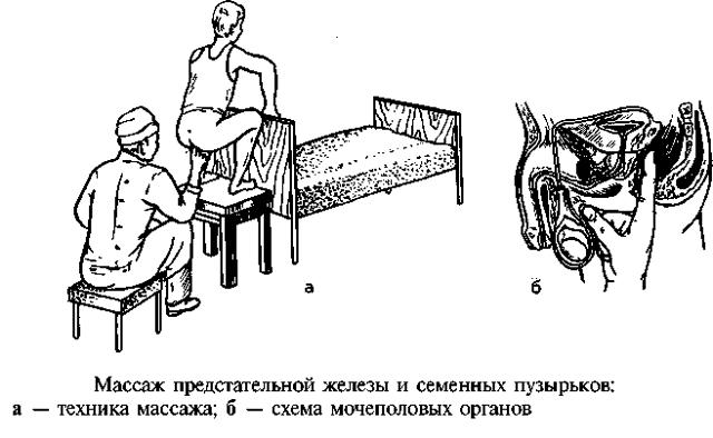 Массаж простаты: показания и противопоказания, техника проведения, меры предосторожности