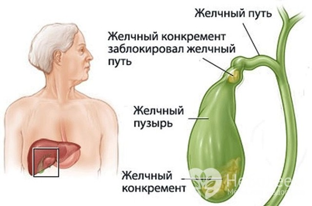 Механическая желтуха: что это такое, причины возникновения и симптомы, методы лечения