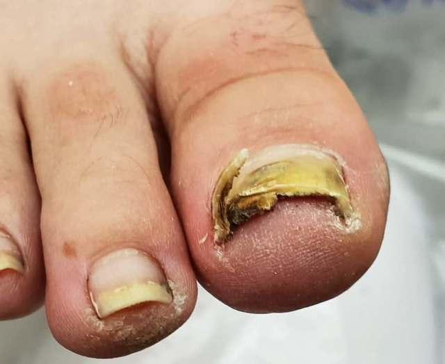 Микоз ногтей: лечение, таблетки от грибка