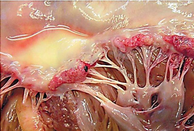 Миокардит: симптомы, лечение, особенности аллергического, идиопатического, инфекционного миокардита