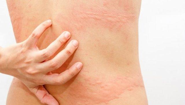 Многочисленные высыпания на спине у взрослого: возможные причины и методы диагностики