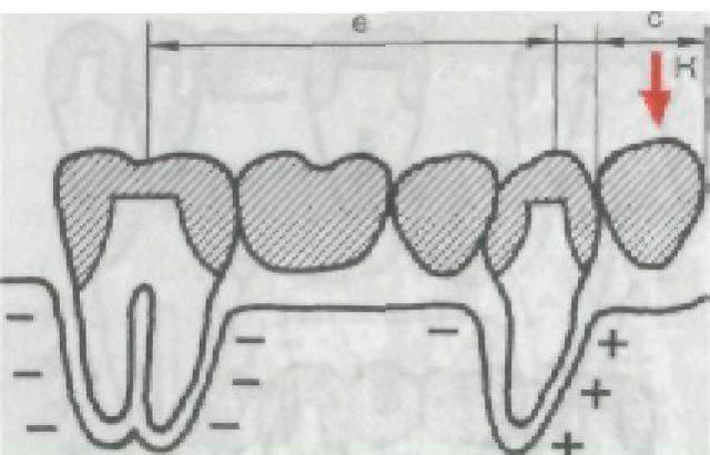 Мостовидные протезы и их виды: с односторонней опорой, консольные мосты, на имплантах