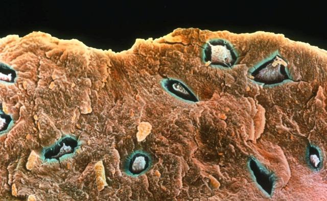 Мраморная болезнь у детей и взрослых: причины возникновения, клинические проявления, диагностика и принципы лечения