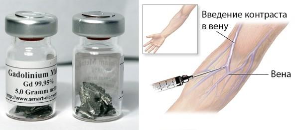 МРТ брюшной полости: показания и противопоказания, подготовка к обследованию, ход проведения, расшифровка результатов