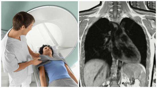 МРТ грудной клетки: показания и противопоказания, подготовка к процедуре, алгоритм проведения