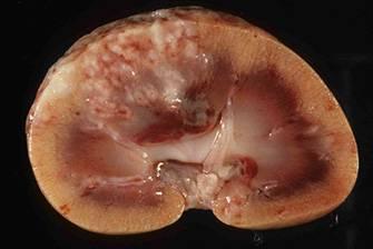 Нефрит: симптомы, лечение острого, хронического и интерстициального