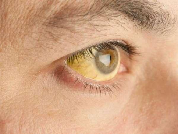Некроз печени: причины патологии, характерные признаки, виды исследований, особенности лечения и прогноз