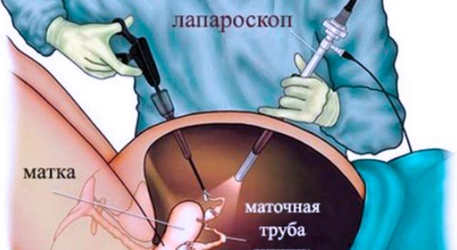 Непроходимость маточных фаллопиевых труб: основные причины патологии, методы диагностики и лечебные манипуляции, период восстановления