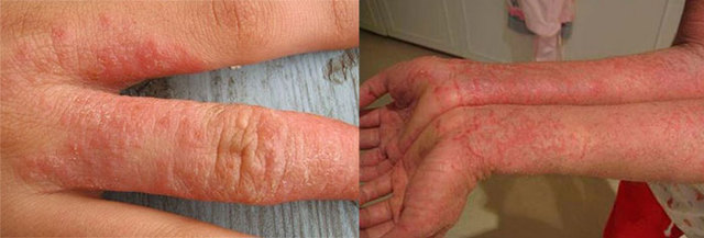 Нейродермит: что это такое, фото симптомов у взрослых и детей, методы лечения в домашних условиях