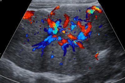Нодулярная гиперплазия печени: причины развития, клинические проявления, способы диагностирования и лечения