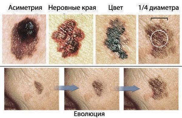 Новообразований на коже: показания и противопоказания к удалению