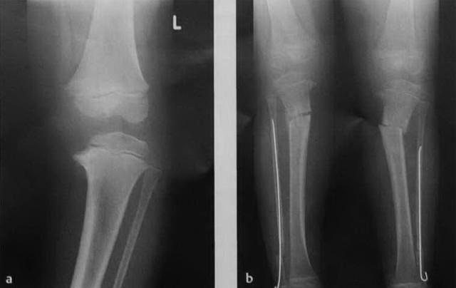 О-образные ноги, варусная деформация у ребенка и взрослого: причины развития, клинические проявления, способы лечения и меры профилактики