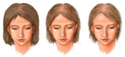 Обследования при гирсутизме и алопеции у женщин