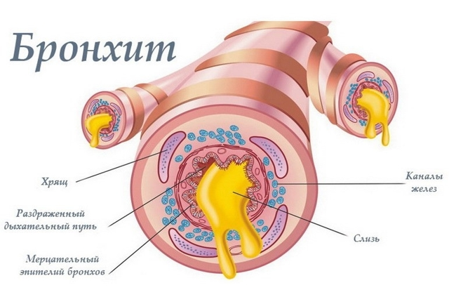 Обструктивный бронхит: симптомы и лечение острой и хронической формы заболевания