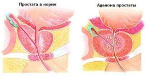 Ингибитор 5 альфа редуктазы при аденоме простаты
