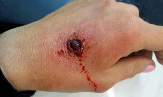 Огнестрельные раны: классификация повреждений, особенности лечения и возможные осложнения