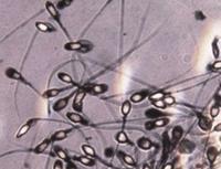 Описание и классификация акинозооспермии, есть ли шанс наступления беременности?