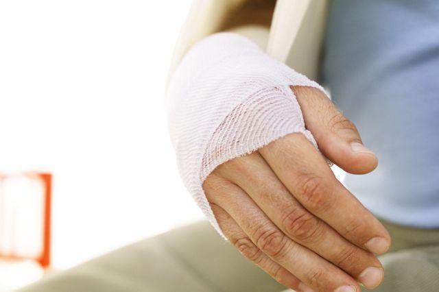 Оскольчатый перелом локтевой кости руки со смещением и без: последствия, лечение, операция