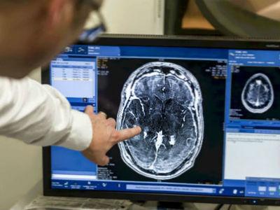 Особенности проведения УЗИ сосудов головного мозга и шеи: суть ультразвукового исследования