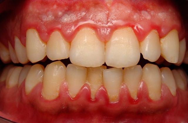 Отек десны возле зуба: причины воспаления, методы лечения, применение полосканий