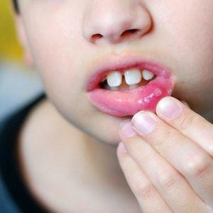 Ожог языка кипятком: степени повреждений, методы лечения, запрещенные действия и профилактика