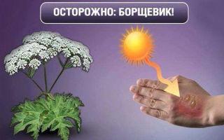Ожоги борщевиком: симптомы, что делать, способы лечения в домашних условиях