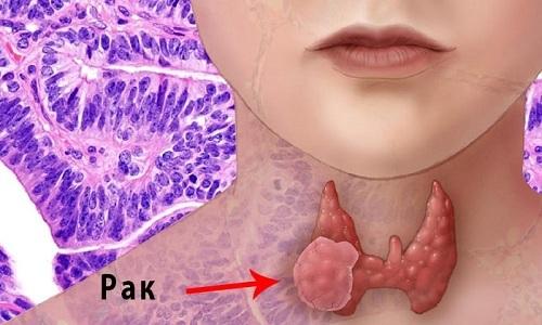 Папиллярный рак щитовидки: причины возникновения, клиническая картина, тактика лечения и прогноз