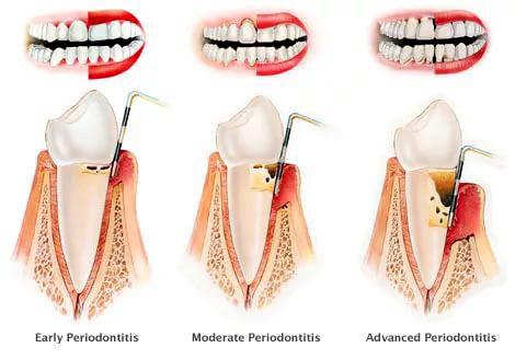 Пародонтоз: причины появления, клинические симптомы, лечение и профилактика