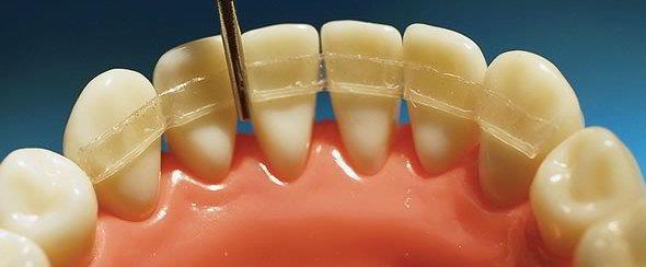 Патологическая подвижность зубов у взрослых – что делать?