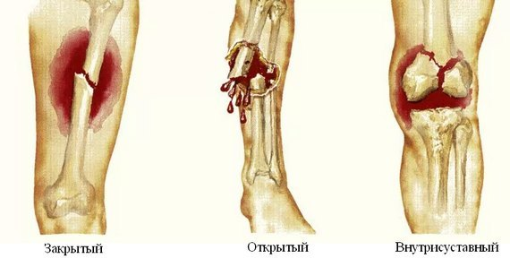 Патологический перелом плечевой кости, перелом при метастазах: симптомы, лечение