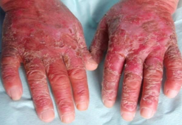 Пеллагра: симптомы и лечение, заболевание при недостатке витаминов и их плохой усвояемости