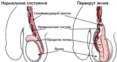 Перекрут яичка: провоцирующие факторы, характерные симптомы, методы лечения и возможные осложнения