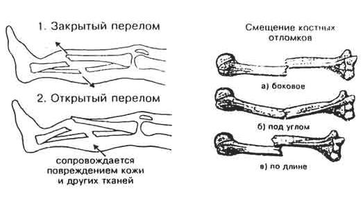 Перелом фаланги пальцев кисти руки: виды травм, симптомы, диагностика и лечение