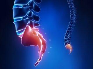 Перелом копчика: классификация повреждений, характерные симптомы, методики лечения и возможные последствия