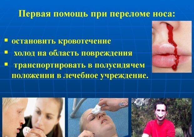Перелом костей носа: характерные симптомы, последствия повреждения, методы обследования и терапии