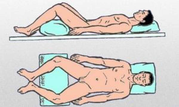 Перелом костей таза: виды повреждений, неотложная помощь, методы терапии и реабилитации
