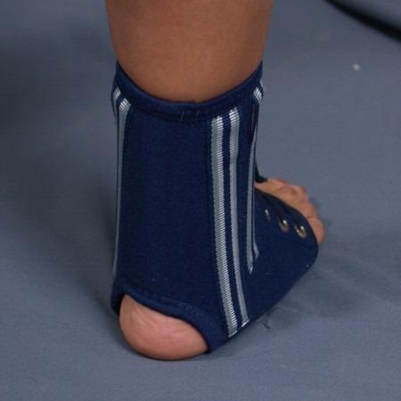 Перелом лодыжки со смещением и без: типы повреждений, характерные признаки, принципы лечения, особенности восстановления
