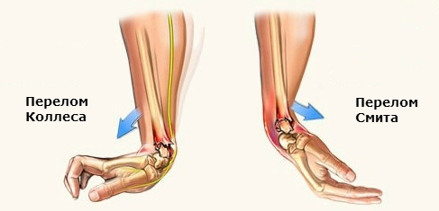 Перелом лучевой кости в типичном месте без смещения и со смешением, как разработать руку