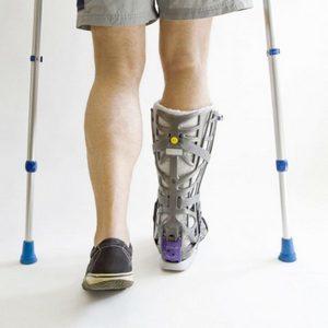Перелом плюсневой кости стопы: факторы риска, клинические проявления, варианты лечения и сроки восстановления