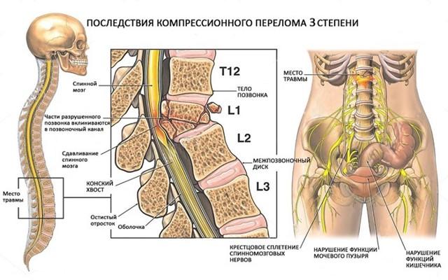 Перелом поясничного отдела позвоночника: провоцирующие факторы, сопутствующие симптомы, первая помощь и принципы лечения