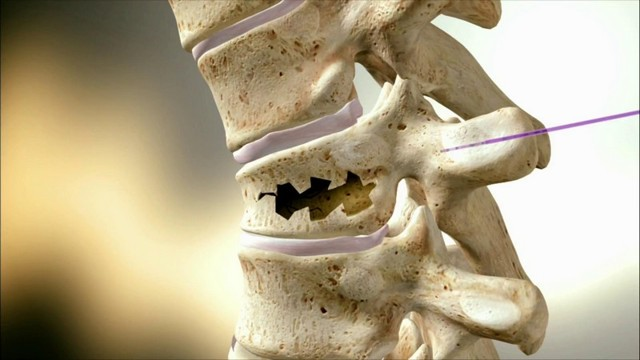 Перелом шейного отдела позвоночника: характерные признаки, неотложная помощь при повреждении спинного мозга, методы лечения