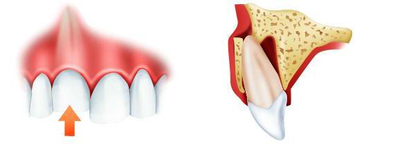 Перелом зуба: классификация травм, характерные признаки, методы обследования и лечения
