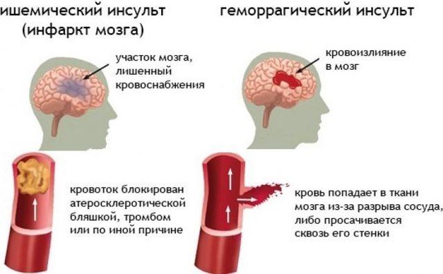 Первая помощь при инсульте: алгоритм действий при выявлении признаков поражения мозга
