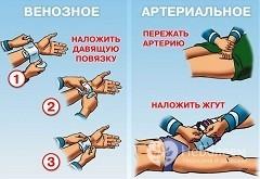 Первая помощь при кровотечениях: что можно и что нельзя делать