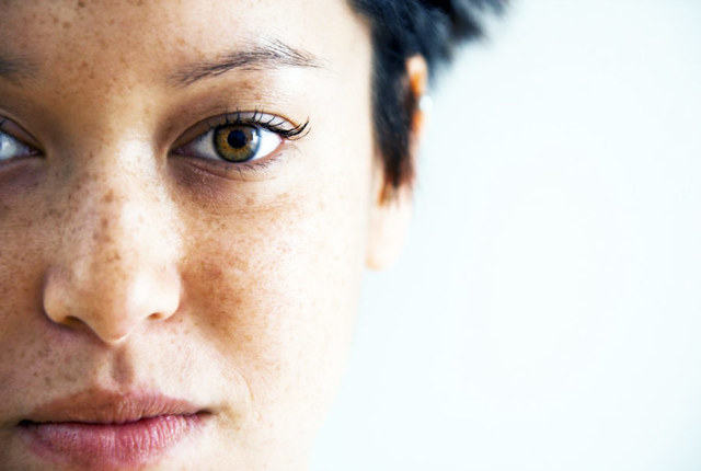 Пигментные пятна на лице: причины возникновения, самые эффективные методы лечения
