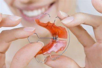 Пластина ребенку для выравнивания зубов, ортодонтические пластины для исправления прикуса