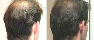 Плазмотерапия для лица и для волос: что это такое, преимущества и особенности процедуры, фото до и после